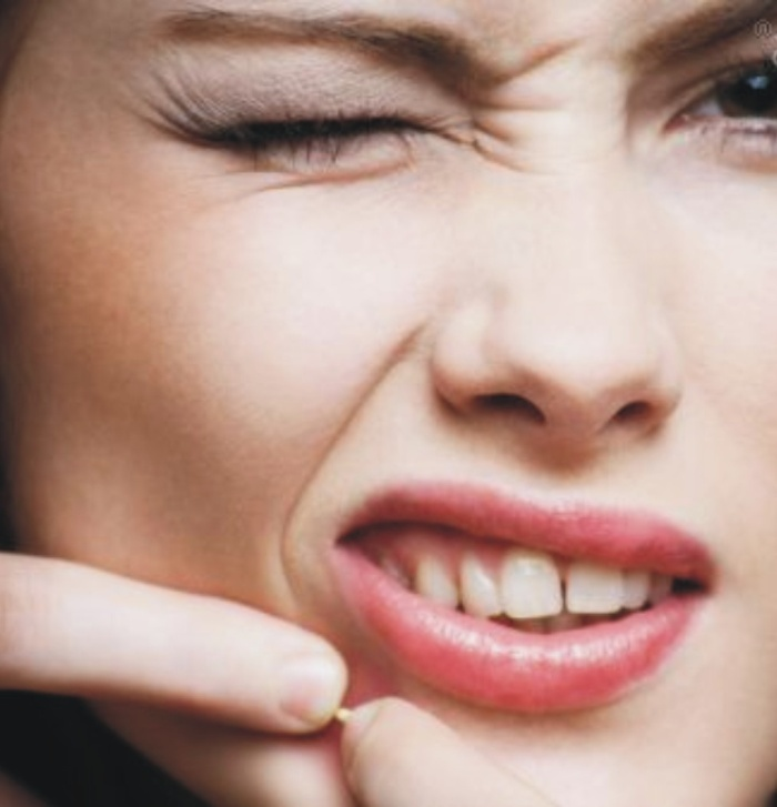 Natural-Remedies-for-Acne